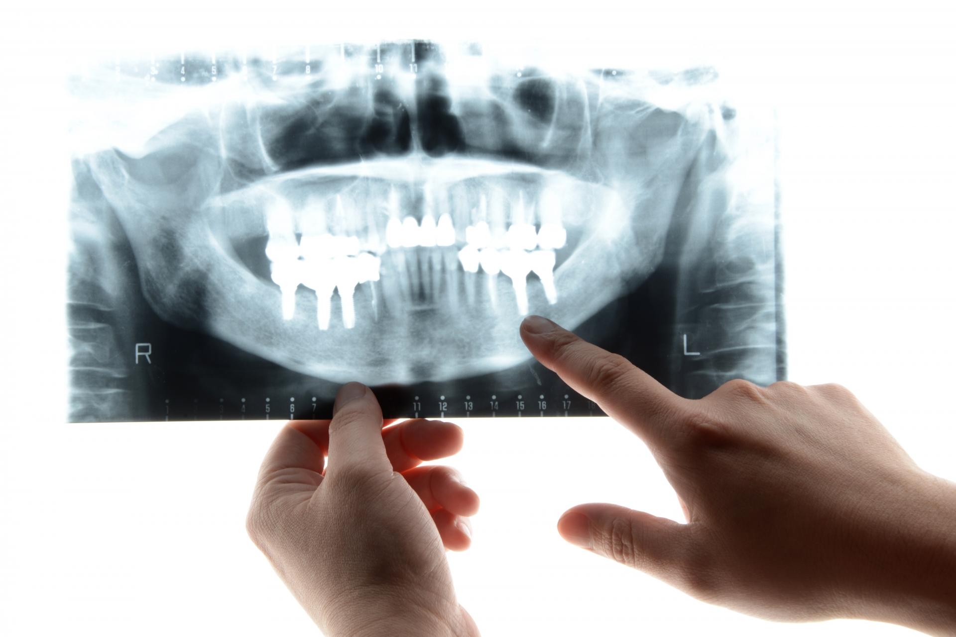 インプラントが出来ないケースと治療における歯磨きの重要性!